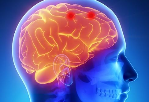 Hacer intervenciones cerebrales por medio de un brazo robótico ya es una realidad